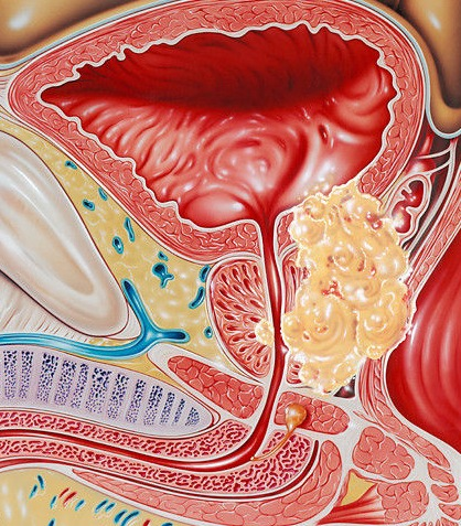 Как вы обнаружили рак простаты