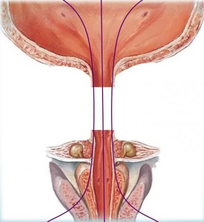 kaltsinati-v-prostate-seks
