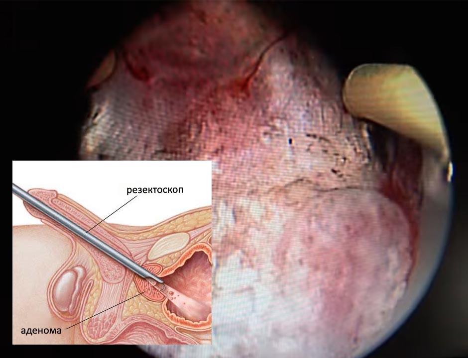 Побочные действия гармонотерапии рака простаты мужские стероиды
